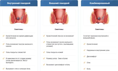 Зовнішній геморой: симптоми, причини і методи лікування