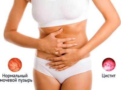 Фурадонін при грудному вигодовуванні опис препарату протипоказання