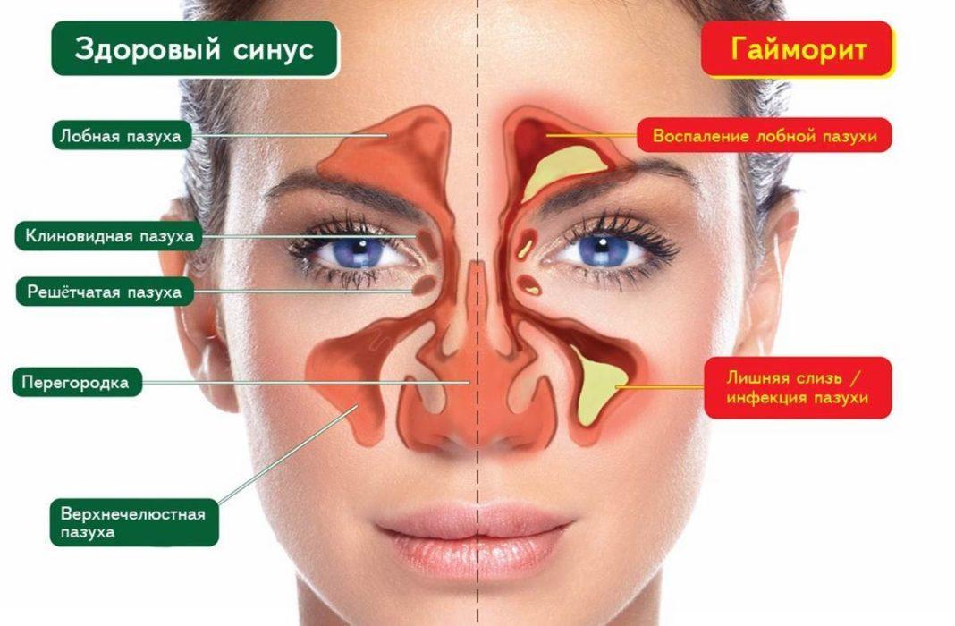 Промивання носа методом зозуля – промивання пазух