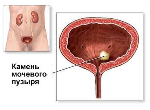 Різноманіття симптомів хвороб сечового міхура у чоловіків