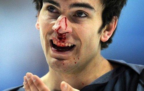 Що робити при травмі носа