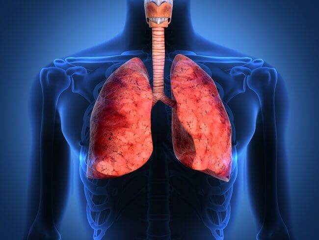 Що таке дифузний пневмофіброз легенів і як його лікувати