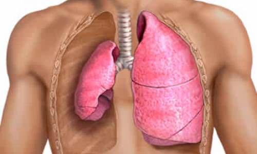 Симптоми клапанного пневмотораксу та методи його лікування