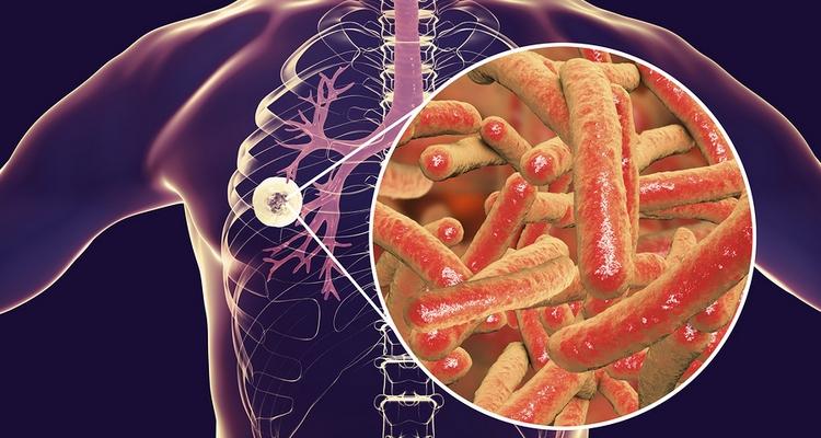 Закрита форма туберкулза в чс е небезпека